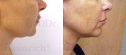 Microcannular liposuction on the chin